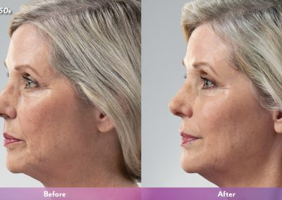 Mother Juvederm
