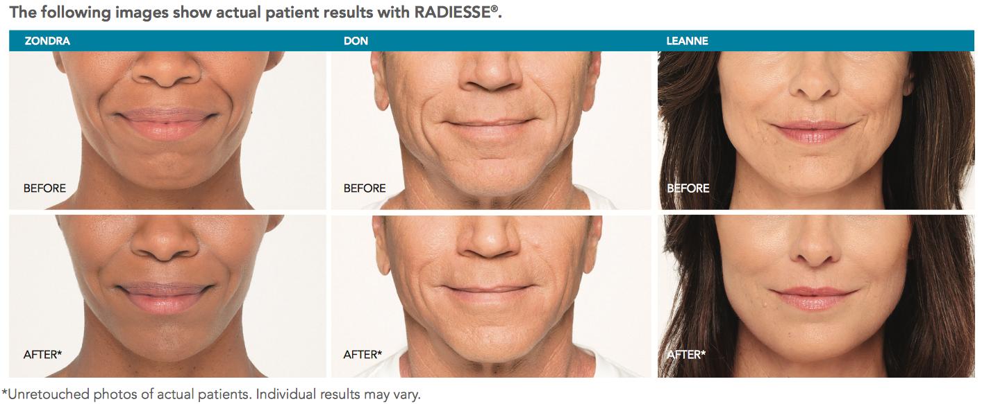 Radiesse   5 Star Medical